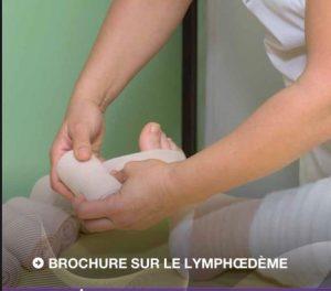 Le lymphœdème dans les cancers gynécologiques (2021)