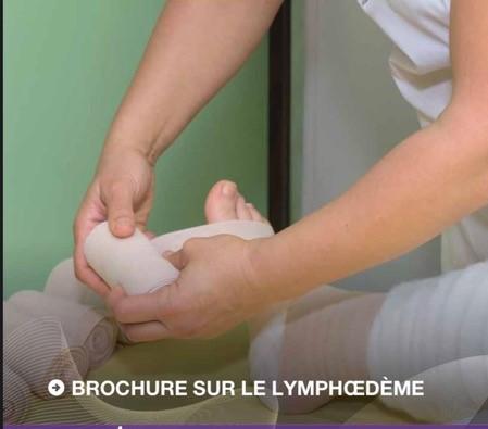 Read more about the article Le lymphœdème dans les cancers gynécologiques (2021)
